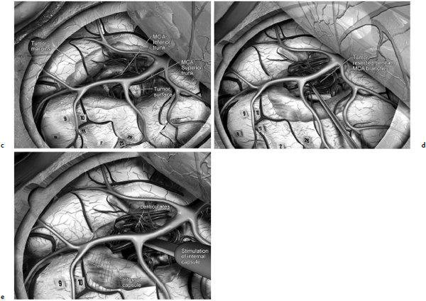 Resection of Gliomas in Eloquent Areas of the Brain   Neupsy Key