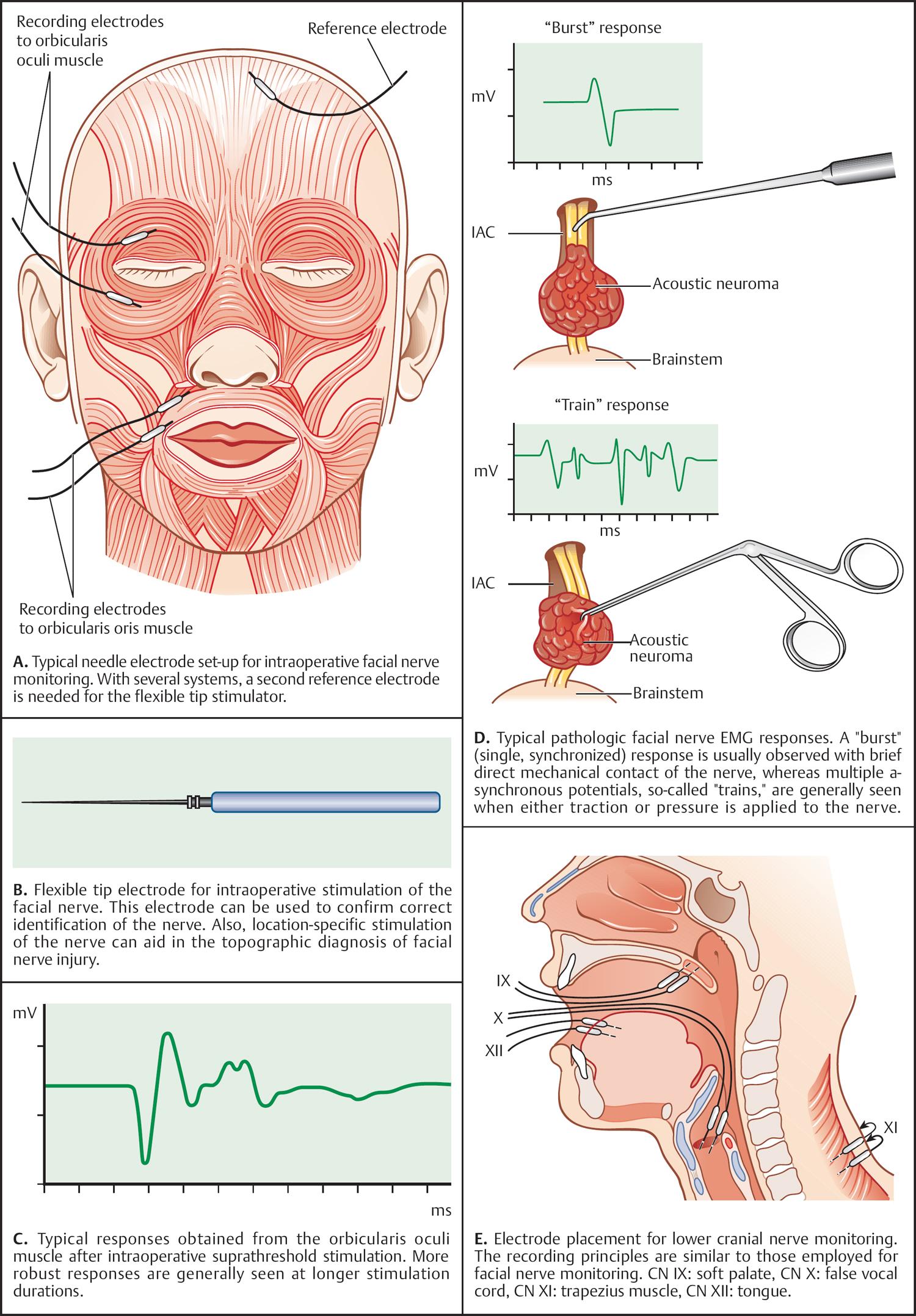 Compressed facial nerve 5