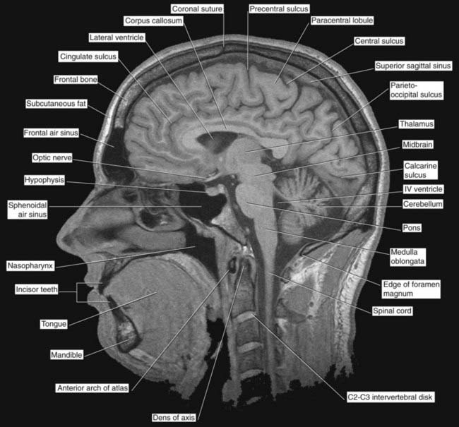 Cerebral topography | Neupsy Key