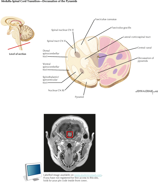 BRAIN STEM AND CEREBELLUM | Neupsy Key