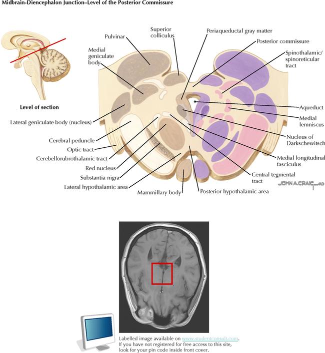 Brain Stem And Cerebellum Neupsy Key