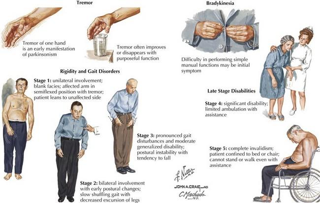 Parkinson Disease | Ne...