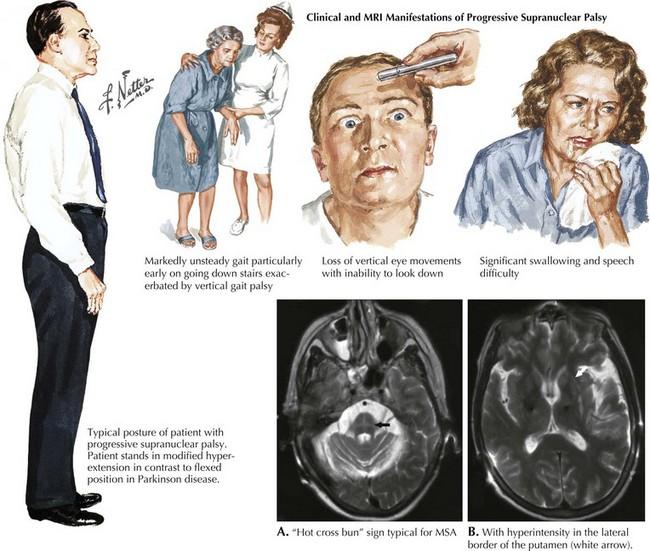 Atypical Parkinsonian Syndromes | Neupsy Key