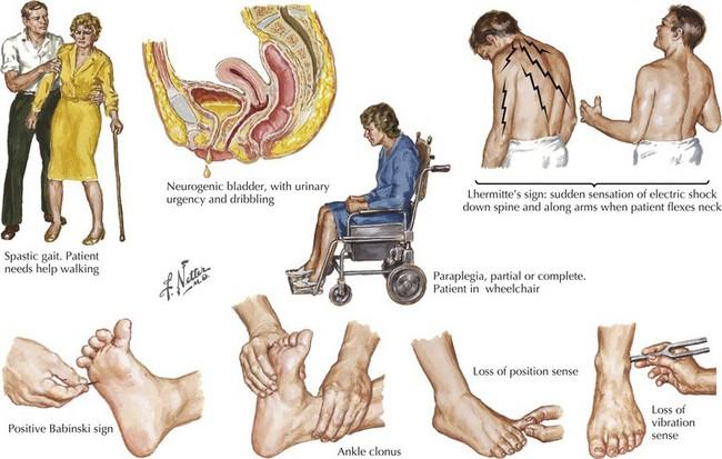 Multiple Sclerosis | Neupsy Key