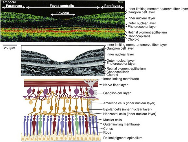 Abnormalities of the Optic Nerve and Retina   Neupsy Key
