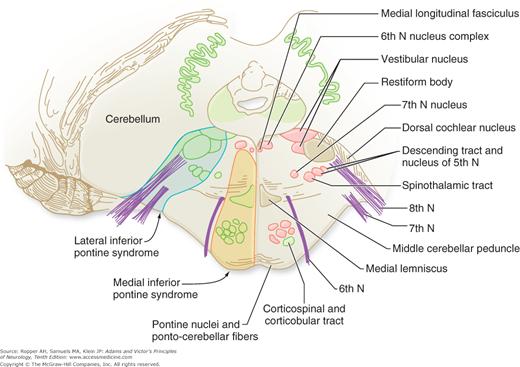 Medial Pontine Syndrome
