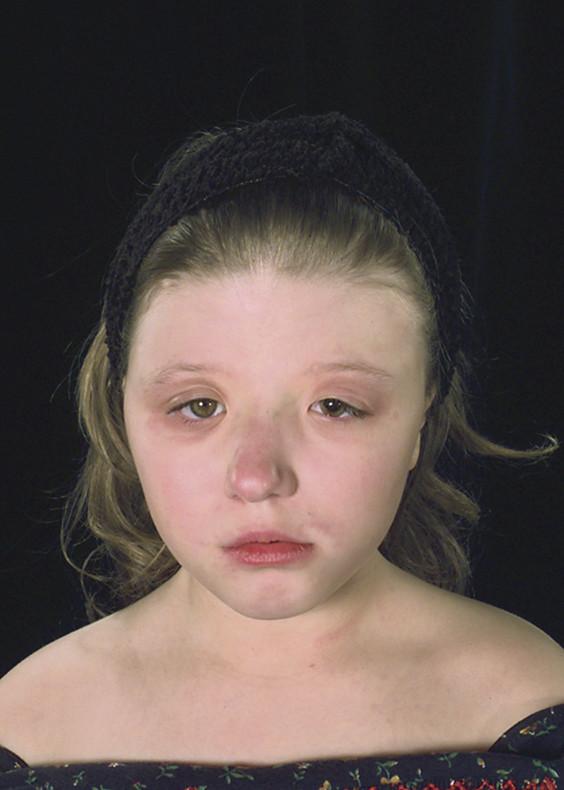 Venous cranial facial syndrome