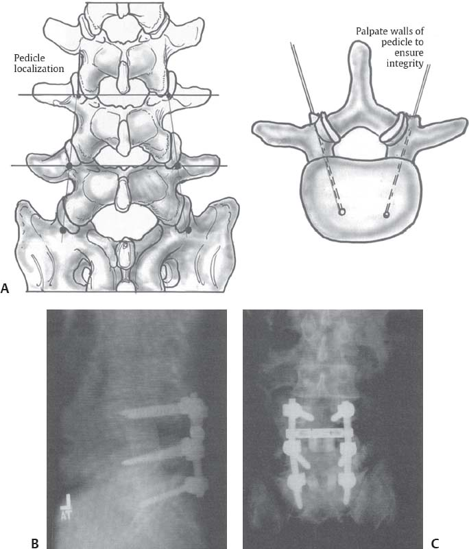 1 Spinal Anatomy And Approaches Neupsy Key