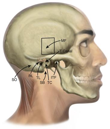 Middle Cranial Fossa Approach | Ento Key