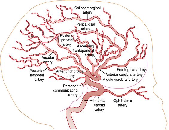 Cerebrovascular Disease in Children | Neupsy Key