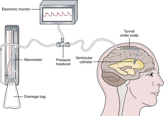 Brain Monitoring System : Intracranial hypertension neupsy key