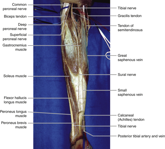 sural nerve | neupsy key, Human Body
