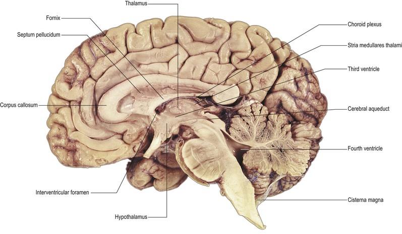 Ventricular System Neupsy Key