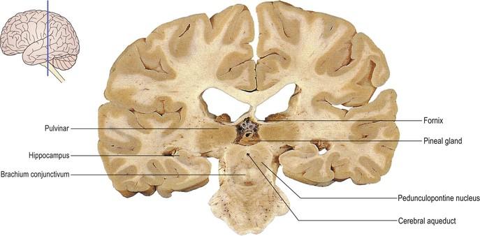 Cerebral Aqueduct Coronal