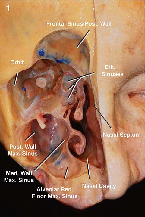 2.1 The Right Side Of The Face Has Been Dissected To Expose The Nasal Cavity  And Its Topographical Relationships. Eth.: Ethmoid, Ethmoidal; Max.