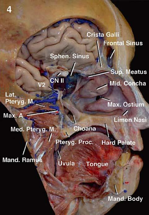 Anatomy Of The Nasal Cavity And Paranasal Sinuses Neupsy Key