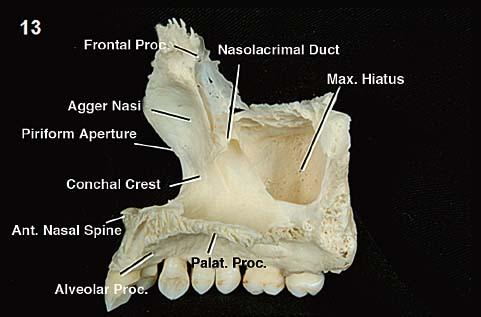 Anatomy of the Nasal Cavity and Paranasal Sinuses | Neupsy KeyInferior Meatus Nasolacrimal Duct