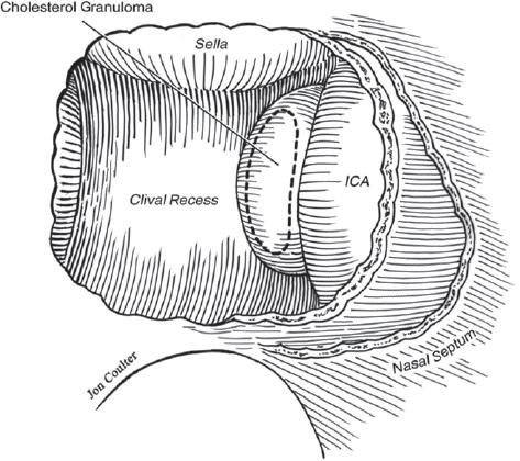 petrous apex diagram lesions of the petrous apex | neupsy key salesforce apex diagram