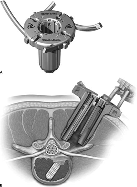 Minimally Invasive Instrumentation Systems Neupsy Key