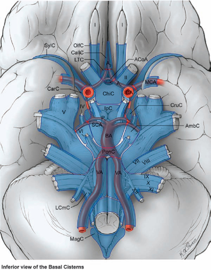 Subarachnoid Dissection | Neupsy Key