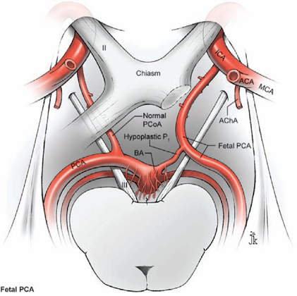 Posterior Communicating Artery Aneurysms Neupsy Key