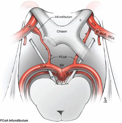 Posterior Communicating Artery Aneurysms | Neupsy Key  Posterior Commu...
