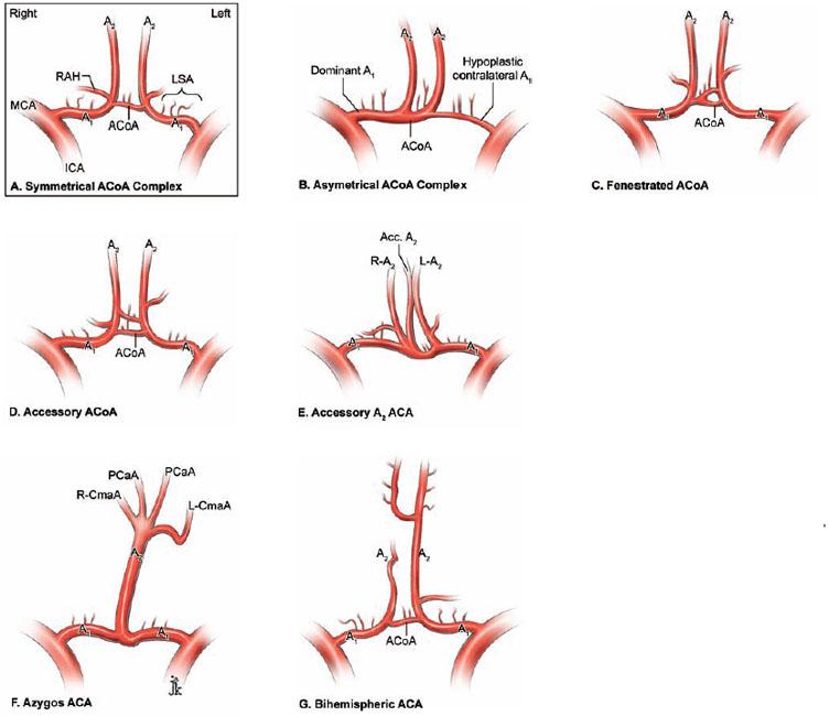 Anterior Communicating Artery Aneurysms | Neupsy Key