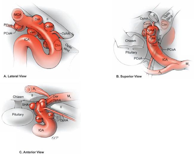 carotid artery aneurysms