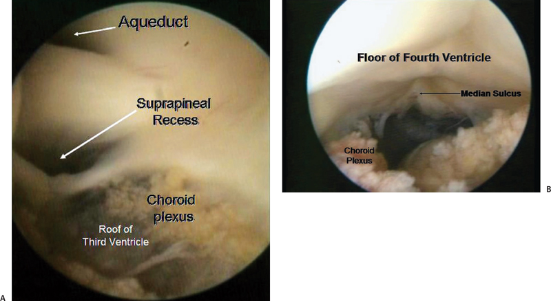 Microsurgical Anatomy Of The Posterior Cranial Fossa