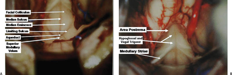 Microsurgical anatomy of the posterior cranial fossa for Floor of fourth ventricle