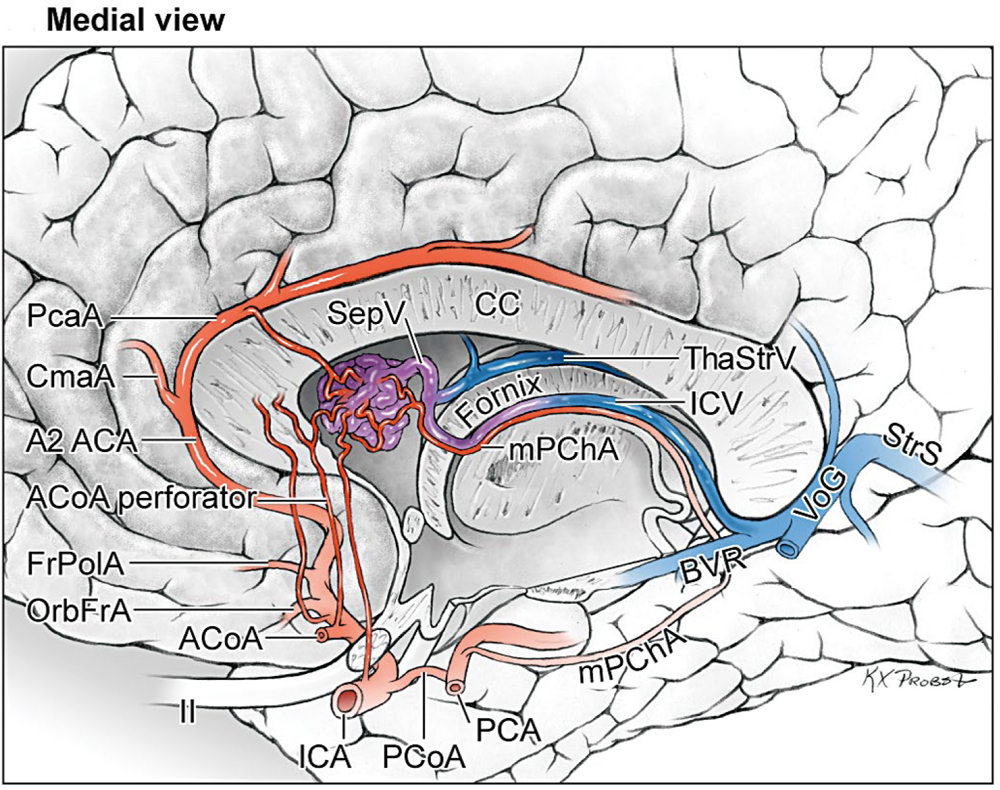 Ventricular and Periventricular Arteriovenous Malformations | Neupsy Key