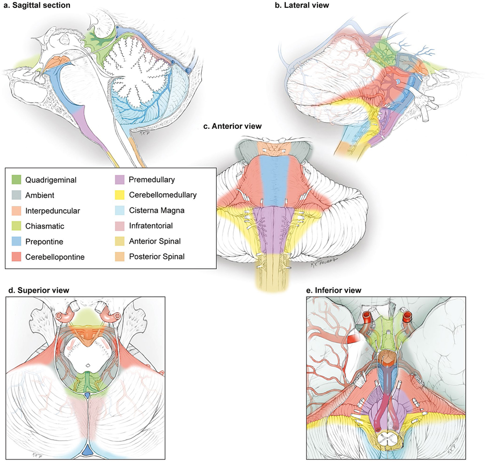 Brainstem Arteriovenous Malformations | Neupsy Key