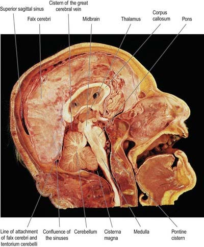 Cranial Meninges | Neupsy Key