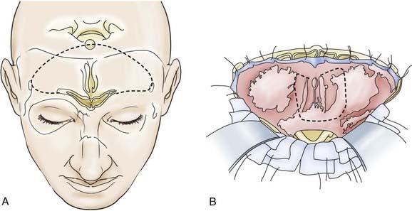 Basic Principles Of Skull Base Surgery Neupsy Key