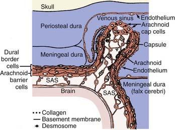 Meningiomas | Neupsy Key