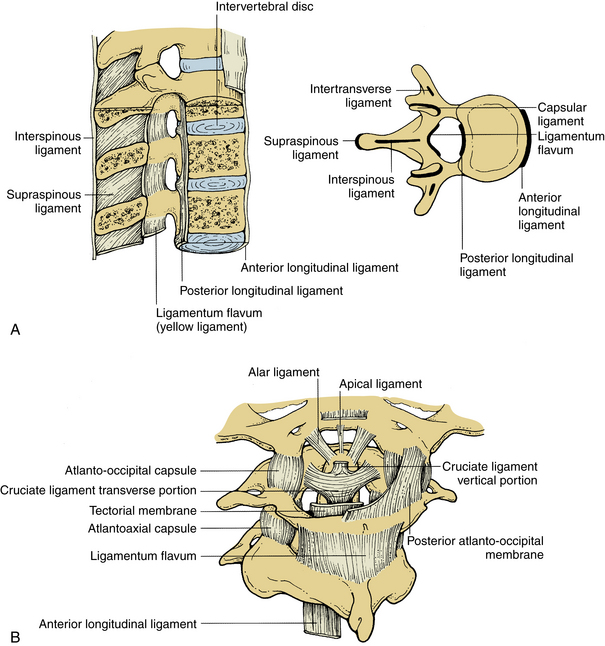 thoracic interlaminar epidural steroid injection