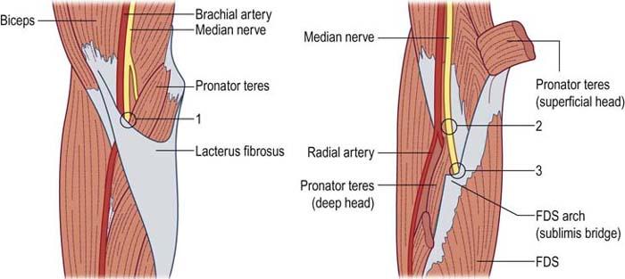 Proximal Median Neuropathy | Neupsy Key