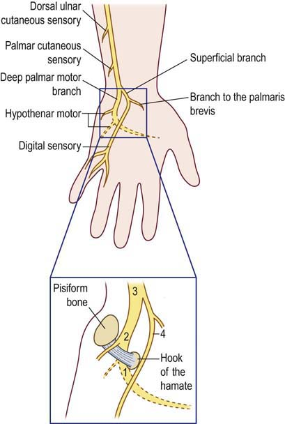 Ulnar Neuropathy At The Wrist Neupsy Key