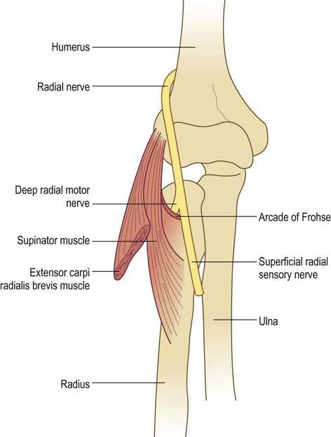 Radial Neuropathy Neupsy Key