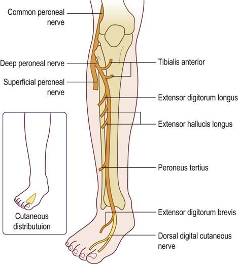 Peroneal peripheral neuropathy for What is motor neuropathy