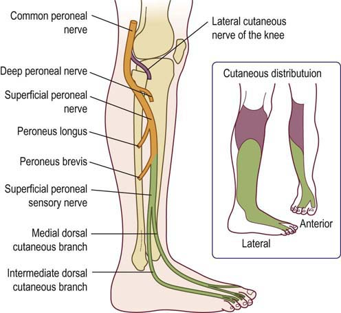 Peroneal Neuropathy Neupsy Key