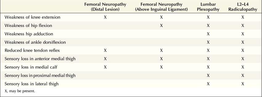 femoral neuropathy | neupsy key, Skeleton