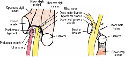 The Diagnostic Anatomy Of The Ulnar Nerve Neupsy Key