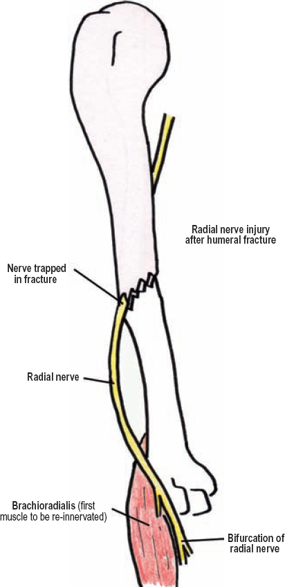 The Diagnostic Anatomy Of The Radial Nerve Neupsy Key