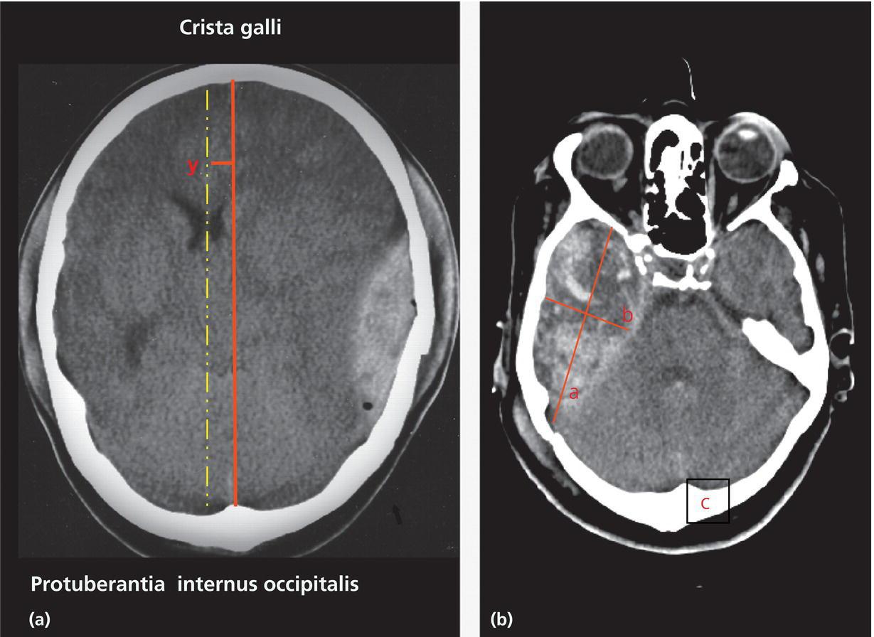 Neuroimaging in trauma...