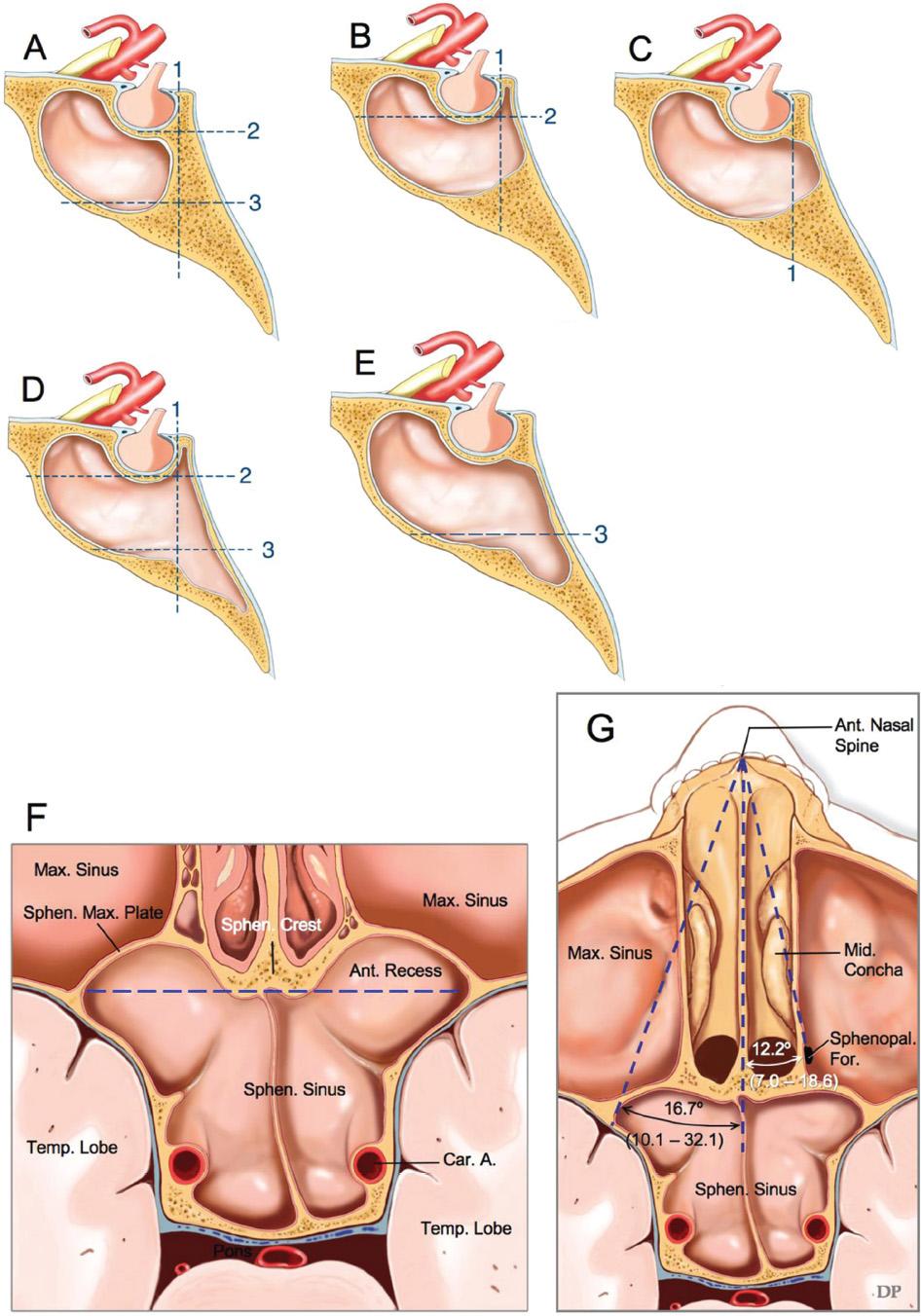 Anatomy of the Sellar and Parasellar Region | Neupsy Key