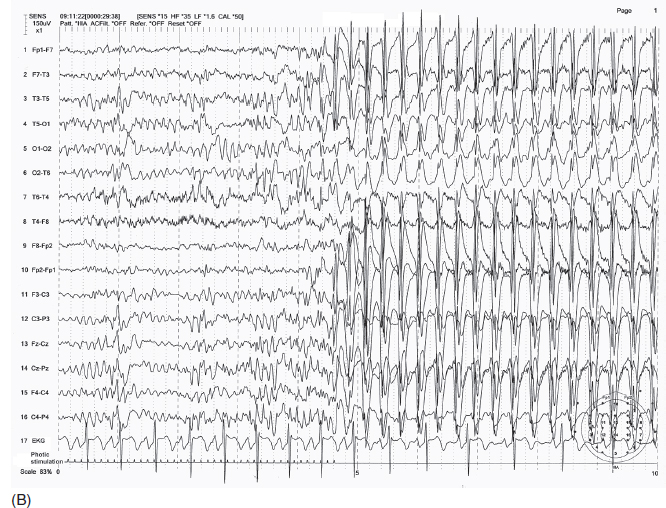 EEG Interpretation in Childhood Epilepsies | Neupsy Key