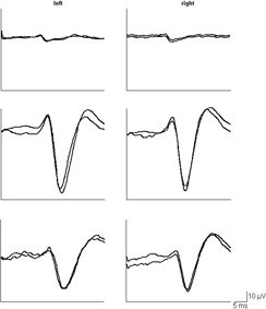 Progressive and Infantile Myoclonic Epilepsies | Neupsy Key