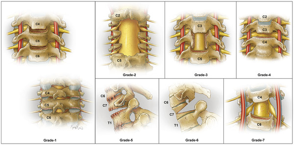 Illustrations depicting the 7 cervical osteotomy types, which are based on anatomical resections according to progression of destabilization. Used with permission from Xavier Studio.