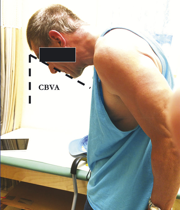A clinical photograph demonstrating the CBVA measurement.
